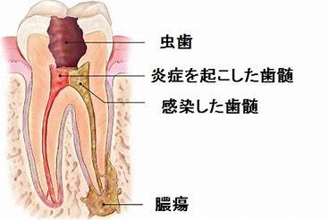 定型 歯痛 非